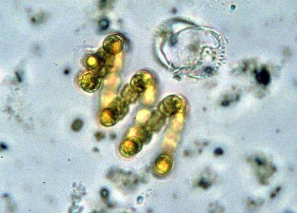 cianobakterii